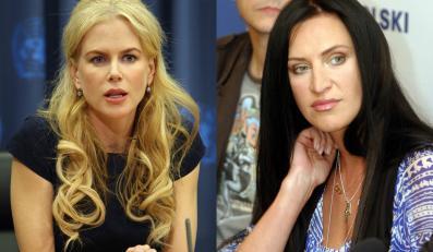 Nicole Kidman i Kayah-cudowne dzieła chirurgów plastyków