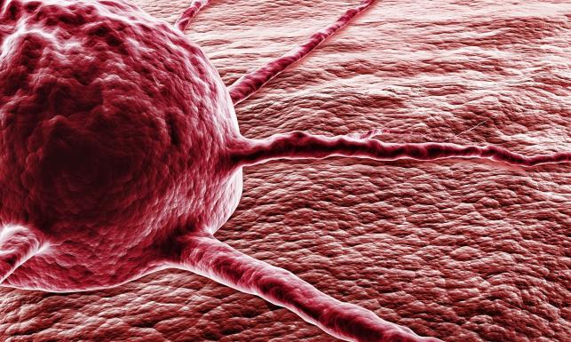 Jak zmniejszyć ryzyko zachorowania na raka? Dwa podstawowe warunki