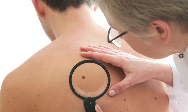 Rak skóry zbiera tragiczne żniwo. Poznaj czerniaka