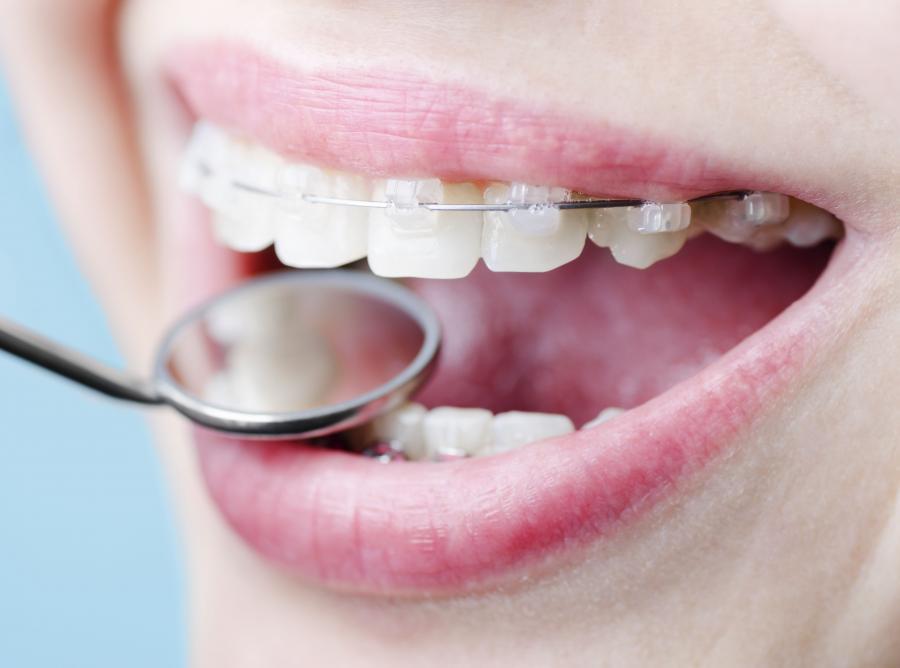 4.    Co zdradzą plamy na zębach?