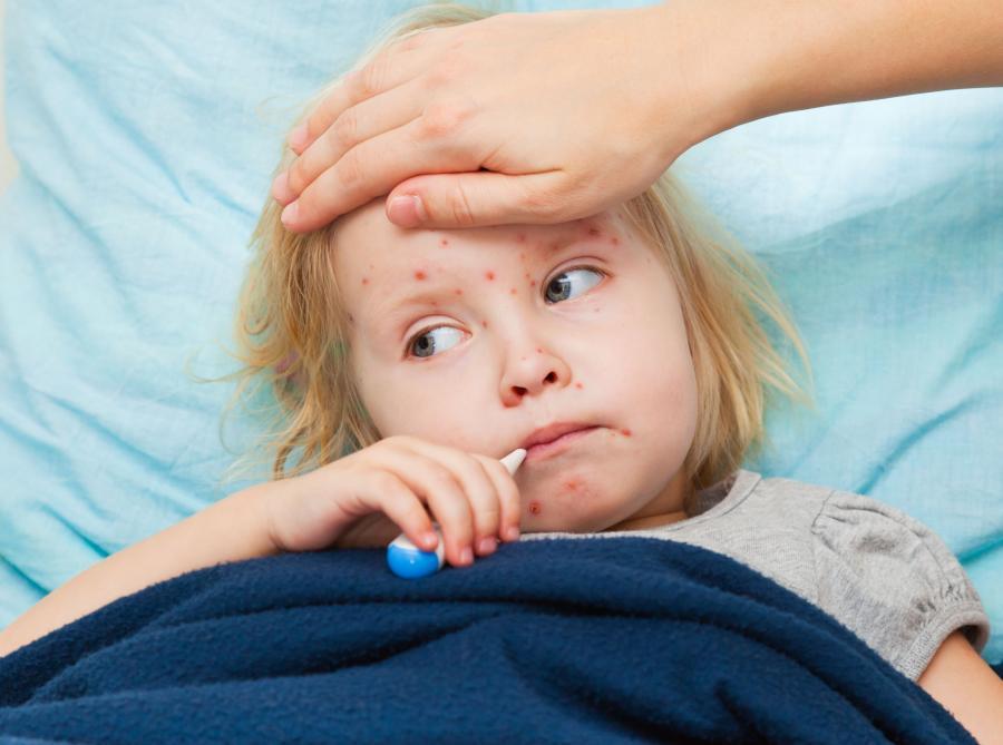 Chora dziewczynka z wysypką